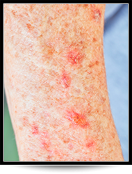 Actinic keratosis Treatment Chandler AZ