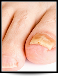 Nail Disorder Treatment Chandler AZ