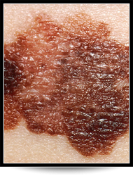 Skin Cancer Chandler AZ